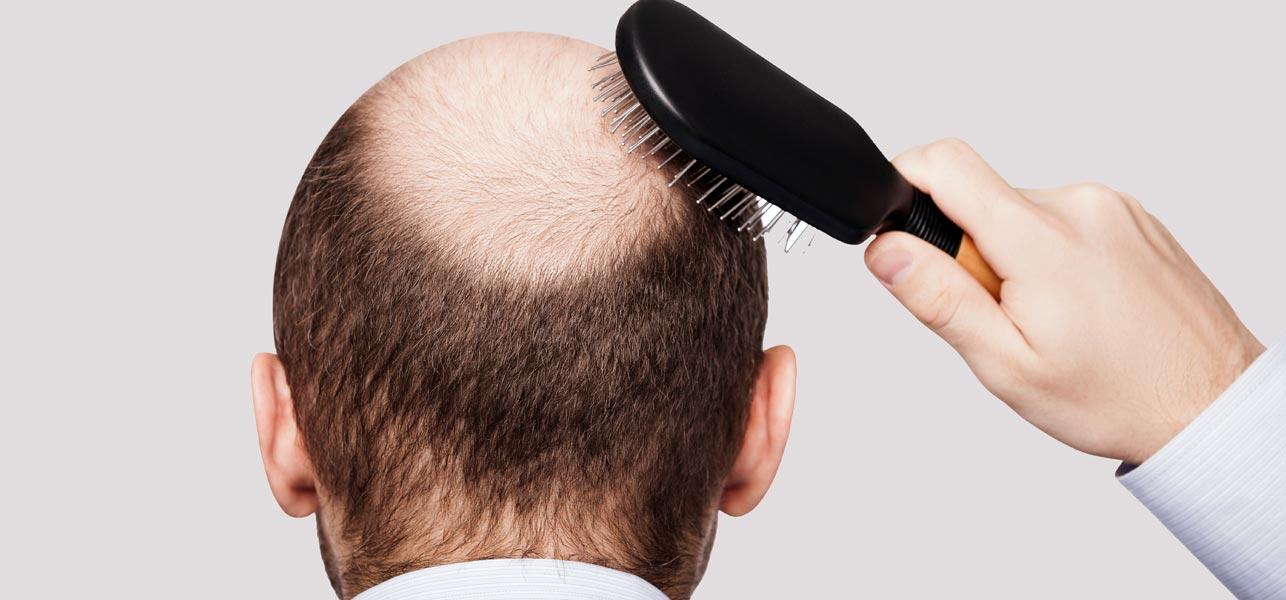 Mezoterapia w leczeniu wypadania włosów